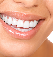 Teeth Whitening Services Chesterfield, MO