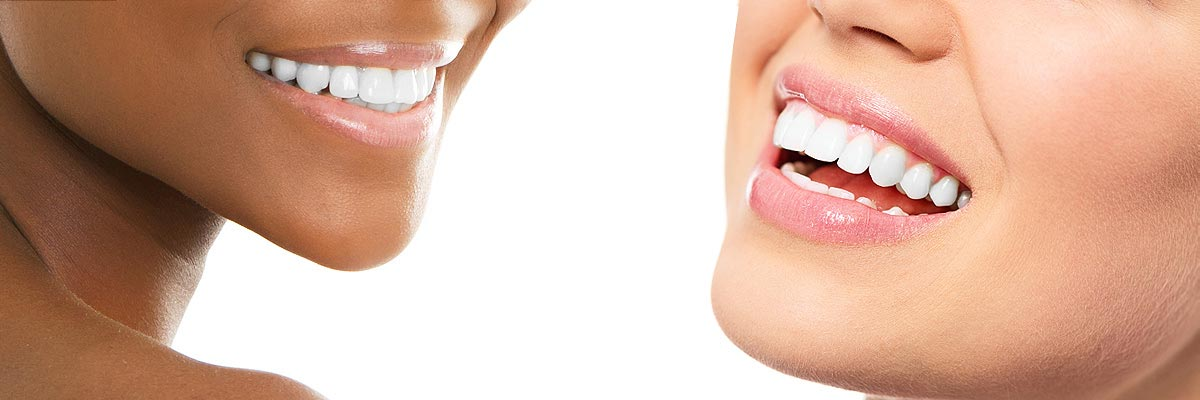Chesterfield Teeth Whitening